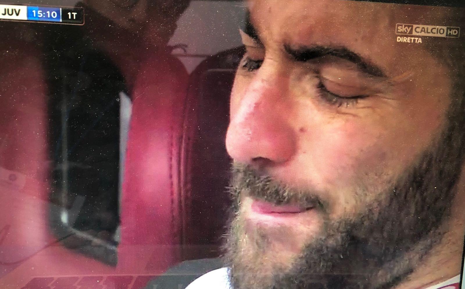 Torino-Juve: Higuain, sembra solo una botta. Attesi gli esami alla caviglia